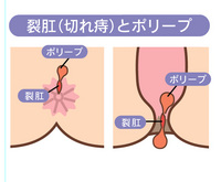 痛み 尻 穴 お尻が痛い!裂肛(切れ痔)とは?自分でできる対処法や治療について